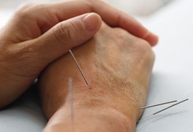 acupuntura sujok